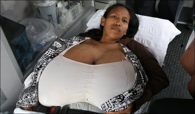 implants breast Bbw with