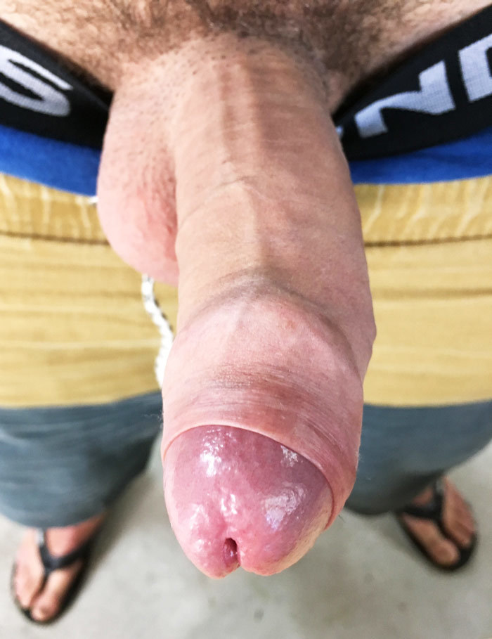 Have a bump inside penis