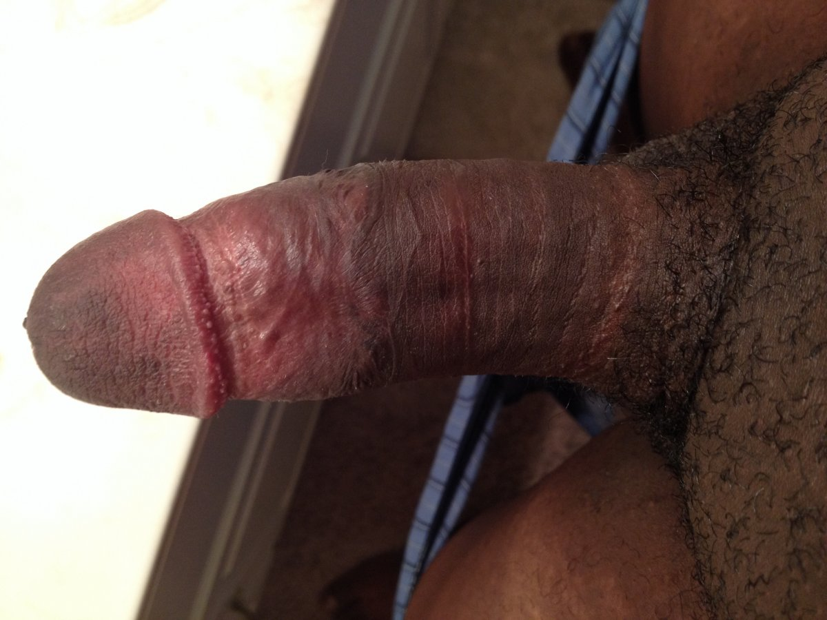See and save as jack darling and his big circumcised cock porn pict