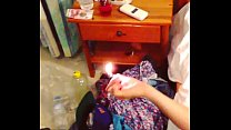 Burned by a lighter